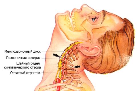 Болит голова и затылок что делать причины головной боли в затылке