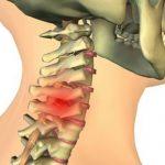 Нормализуем кровообращение при шейном остеохондрозе