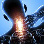 Действенные способы устранения синдрома позвоночной артерии при шейном остеохондрозе
