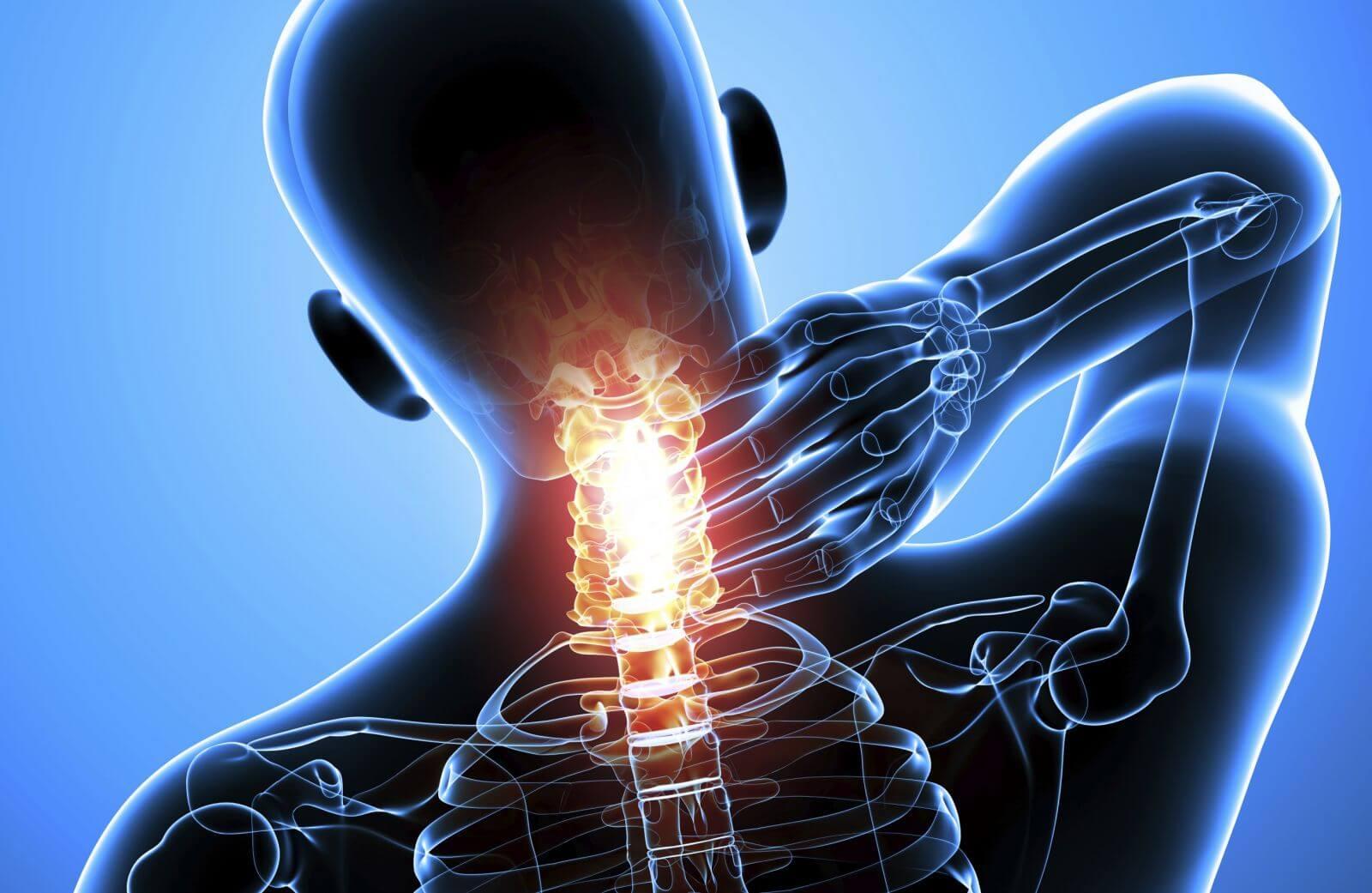 Действенные способы устранения синдрома позвоночной артерии при ...
